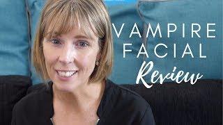Vampire Facial - Martha's Testimonial | The Laser and Skin Clinic