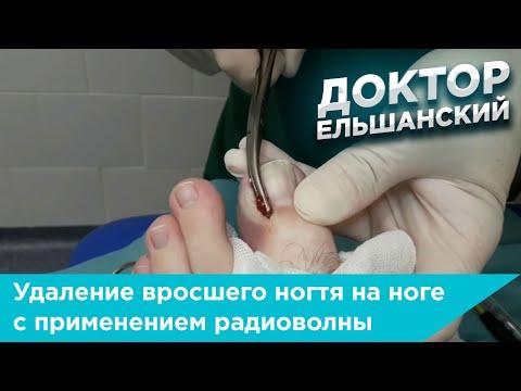 Операция по удалению вросшего ногтя на ноге с применением радиоволны