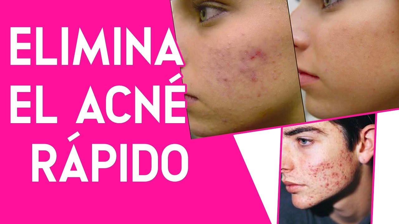 Remedios caseros para quitar el acne rapidamente
