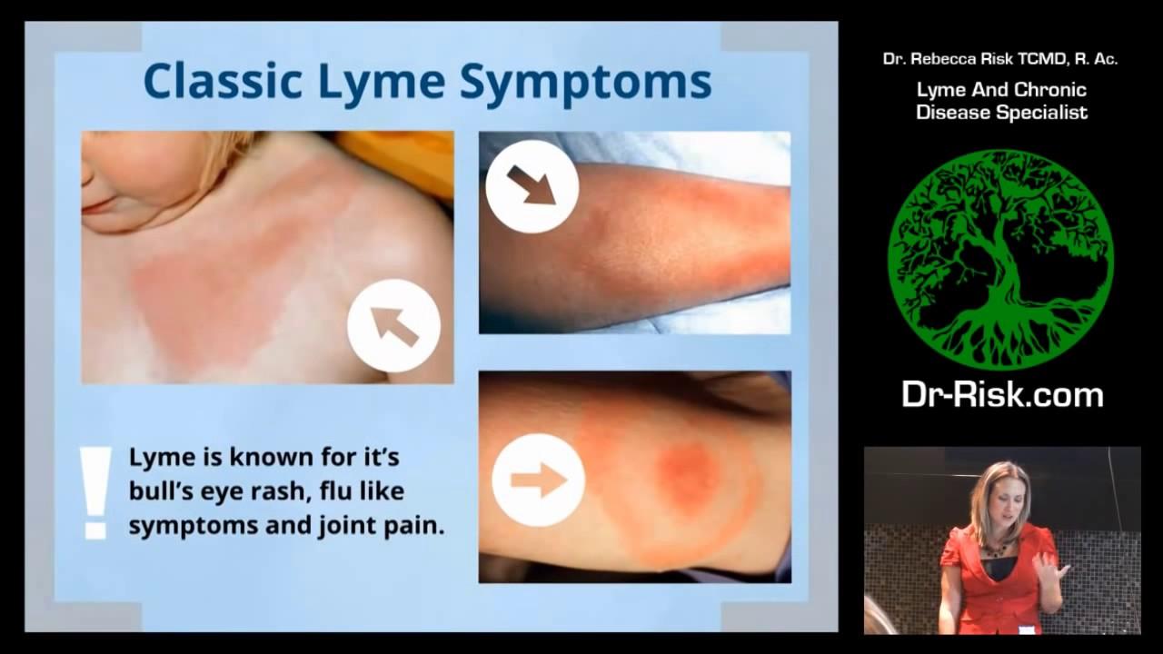 Calgary Lyme Disease Treatment Dr  Risk Ananta Health Clinic