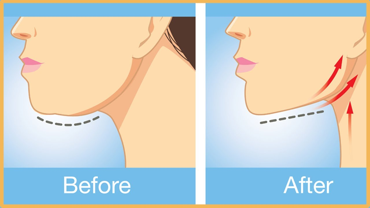 How to remove the second chin 92