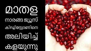 കിഡ്നി സ്റ്റോണ് മാറാന്10 മാർഗങ്ങൾ||Health Tips Malayalam