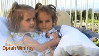 The Conjoined Twins Who Miraculously Survived Separation Surgery | The Oprah Winfrey Show | OWN