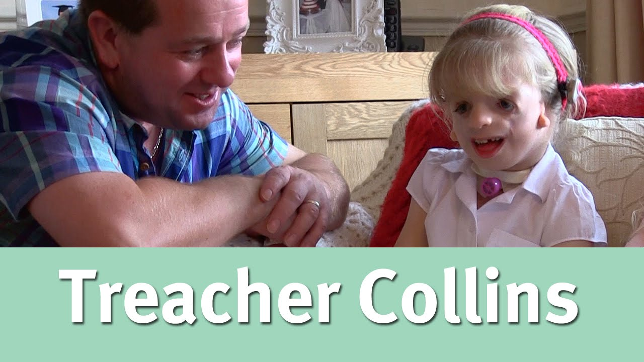 essay on treacher collins syndrome