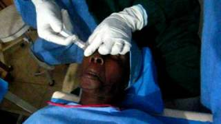 Anesthesia Injection Eyes Cataract Surgery