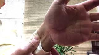 手の冷えや痺れ、腱鞘炎の改善。鳥取ウエルネスオキタカイロオフィス。 thumbnail