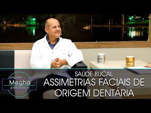 Assimetrias Faciais De Origem Dentária | Dr. Eudécio De Melo | Pgm Megha Profissionais N°642