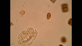 ツノフタヒゲムシ(Prorocentrum micans)
