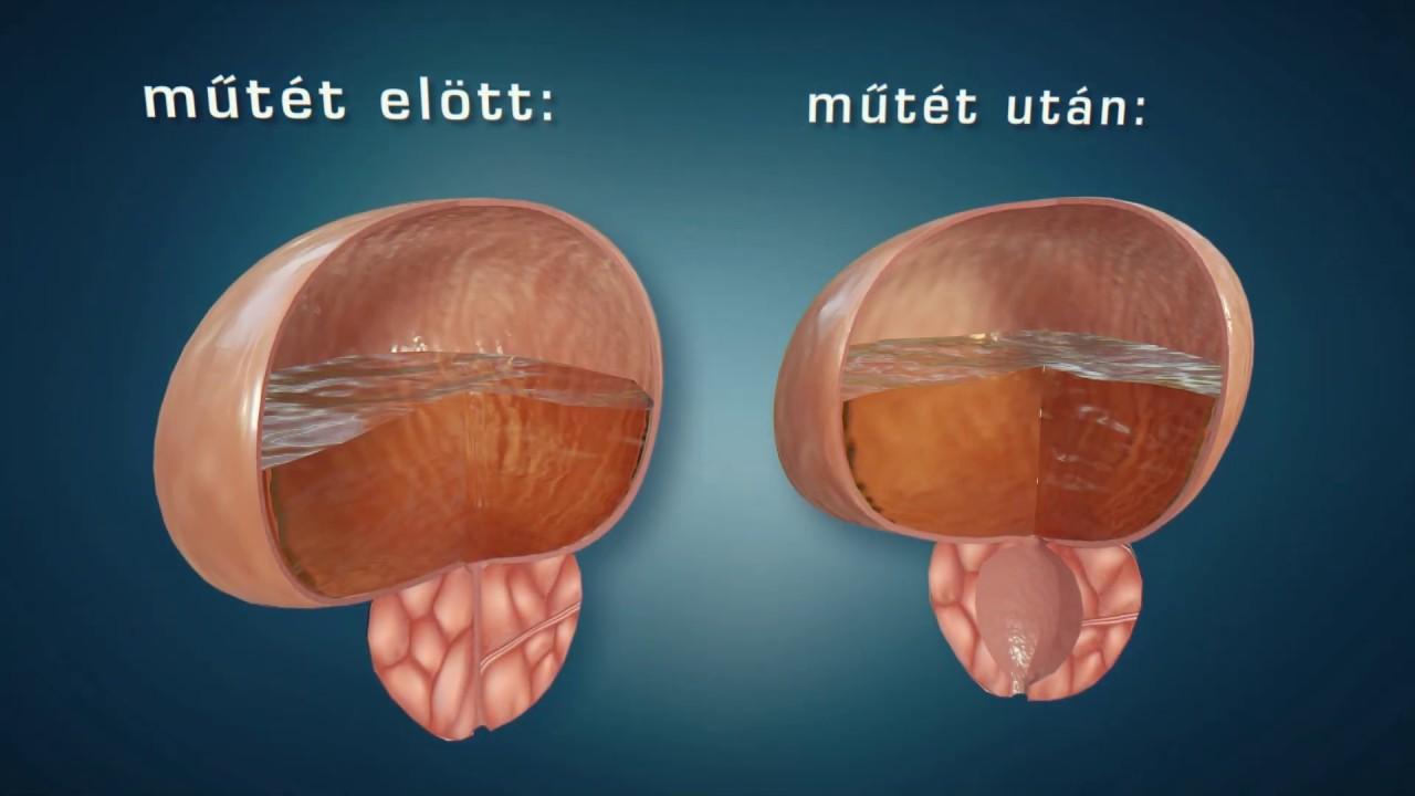 Krónikus prosztatitis gyógyszerek kezelésére Fertőző prosztatitis oka