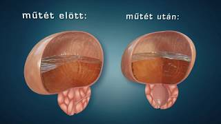 Prostatitis műtéti prostatitis cronica abacteriana duracion