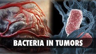 Bacteria in Tumors | CUTTING EDGE