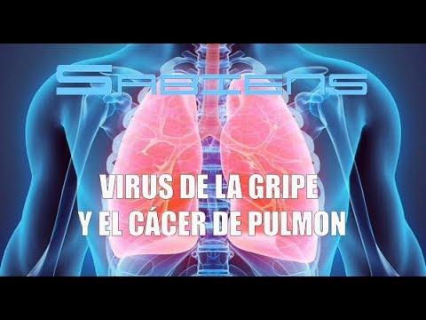 Lo que deberías saber del Virus de la Gripe y el Cáncer de Pulmón