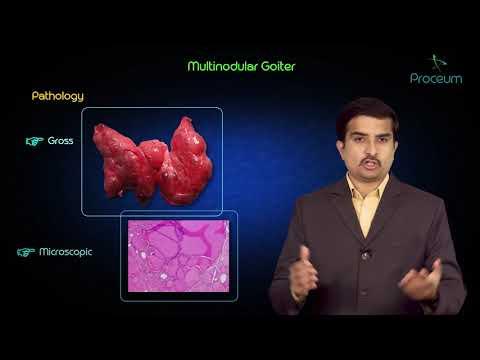 Multinodular goitre - Usmle step 1 pathology discussion and case presentation