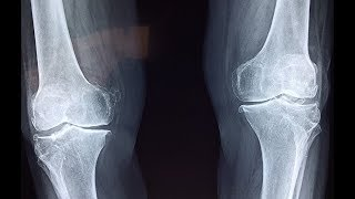 Science News - Scientists discover 'salamander-like' ability for humans to regrow cartilage