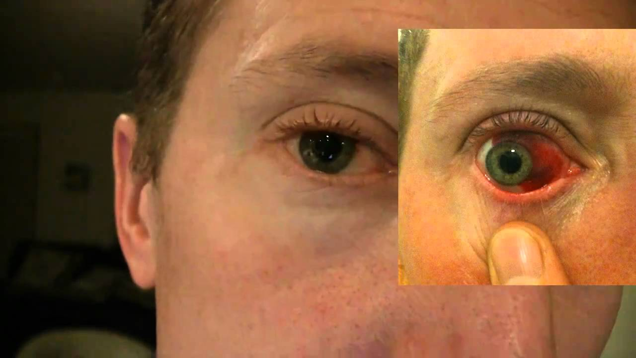 Causes, Symptoms of Broken Blood Vessel in