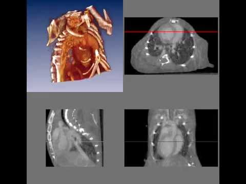 4D In Vivo microCT Imaging of Mouse Heart