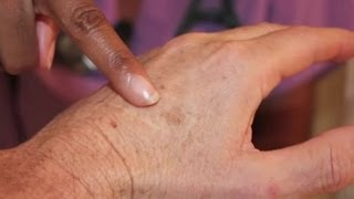 What Are the Causes of Skin Discoloration or Liver Spots? : Health Care Answers