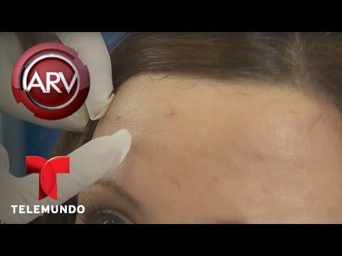 Nuevo tratamiento permite eliminar las marcas del acné | Al Rojo Vivo | Telemundo