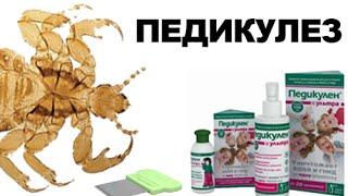 У вас педикулез? Эффективное средство от педикулеза - Педикулен Ультра(http://pedikulen.ru/ В этом видео мы рассказываем что такое педикулез, его последствия и как его победить. Педикуле..., 2014-09-25T18:23:04.000Z)