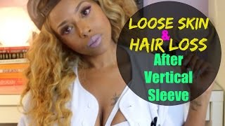 Loose Skin and Hair Loss After Vertical Sleeve Gastrectomy Surgery