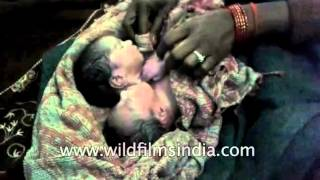 Baby born with two heads in India