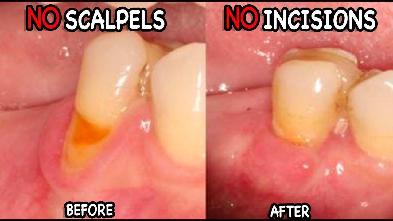 Gum Recession Causes & Treatment (The Pinhole Technique!)