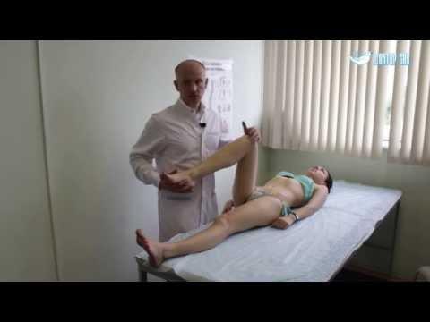 Вальгусная и варусная деформация коленных суставов