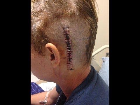 Shanon Brain Surgery Update 11/18/2013