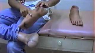 COTECBAURU - Prótese para amputação membro inferior