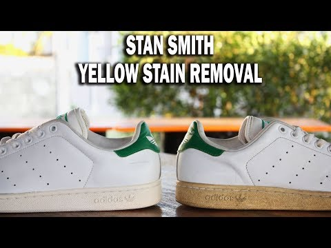 ₱40.00 YELLOW STAIN REMOVAL (Stan Smith Shoe Restoration)