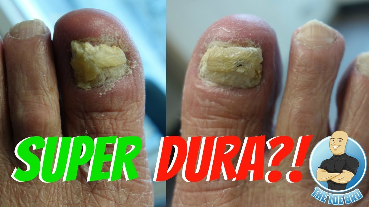 CUTTING OF VERY HARD & EXTREME THICK TOENAILS - YouTube