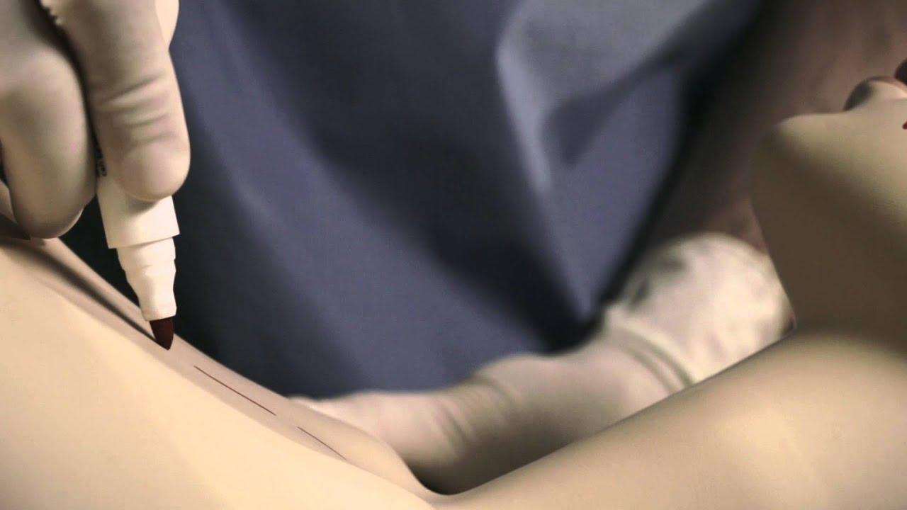 brust nach brustverkleinerung