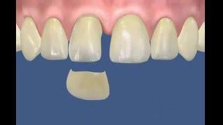 Установка виниров(Качественная установка виниров, пример работы виниров на зубы., 2016-03-31T10:04:14.000Z)