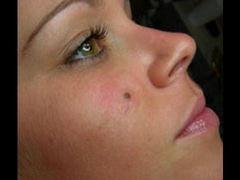 Beauty marks Facial