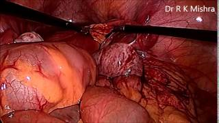 Laparoscopic oophoropexy for recurrent adnexal torsion