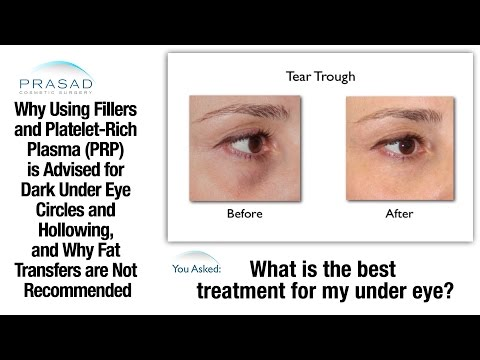 Why Hyaluronic Acid Cosmetic Fillers are Advised for Hollow Under Eyes Over Fat Grafting