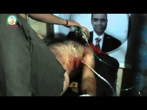 درعا المحطة مجزرة مروعة بحق المدنيين في طريق السد ومخيم درعا +18