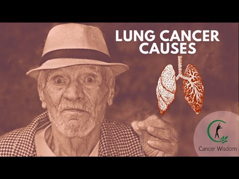 lung-cancer-causes-everyone-should-know-about--finally-understand-the-mystery-behind-lung-cancer