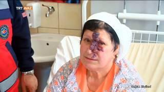 Yüzündeki Yara Alındıktan Sonraki İlk Hali ile Hafize Teyze - Sağlık Elçileri - TRT Avaz