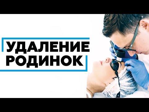 Удаление родинки в Ростове-на-Дону безопасно и безболезненно