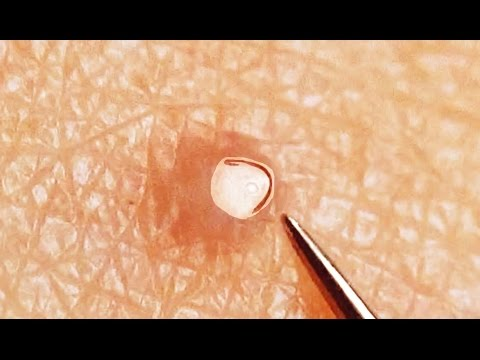 Ingrown Hair Removal On Leg
