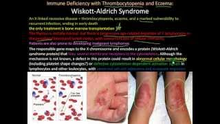 107P   Severe Combined Immunodeficiency, Wiskott Aldrich Syndrome