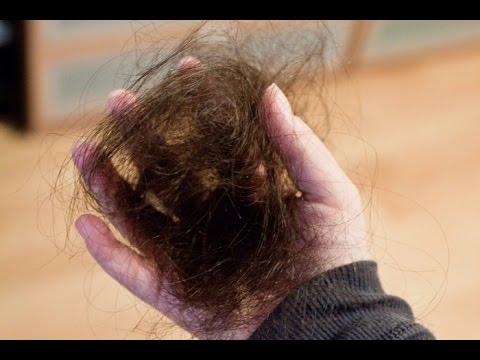 Что делать, если волосы выпадают? - Уход за волосами