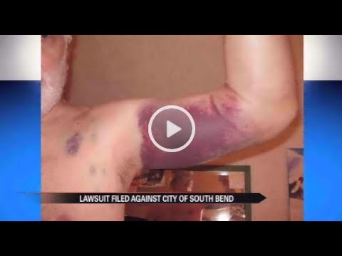 Lawsuit claims South Bend Police used excessive force