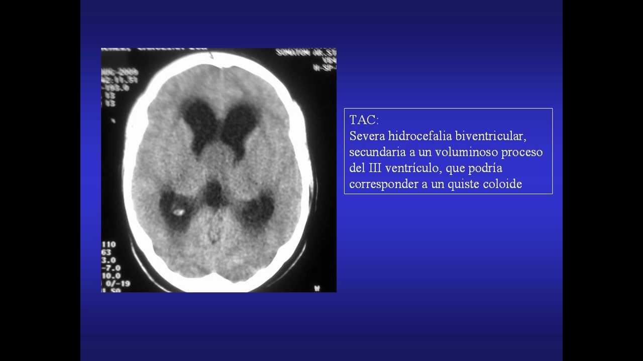 Resonancia magnética de hipertensión intracraneal