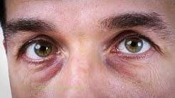 Баба знае: Как да се пазим от заболяване на очите