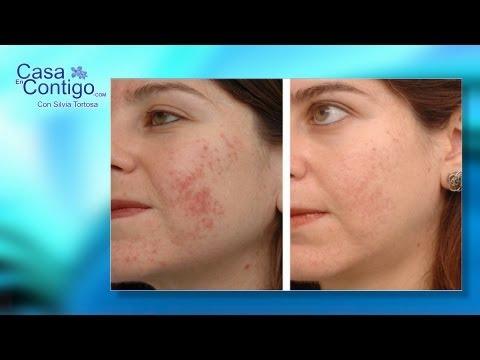 Como quitar las manchas de la piel con Luz pulsada, una solución para las manchas de la piel