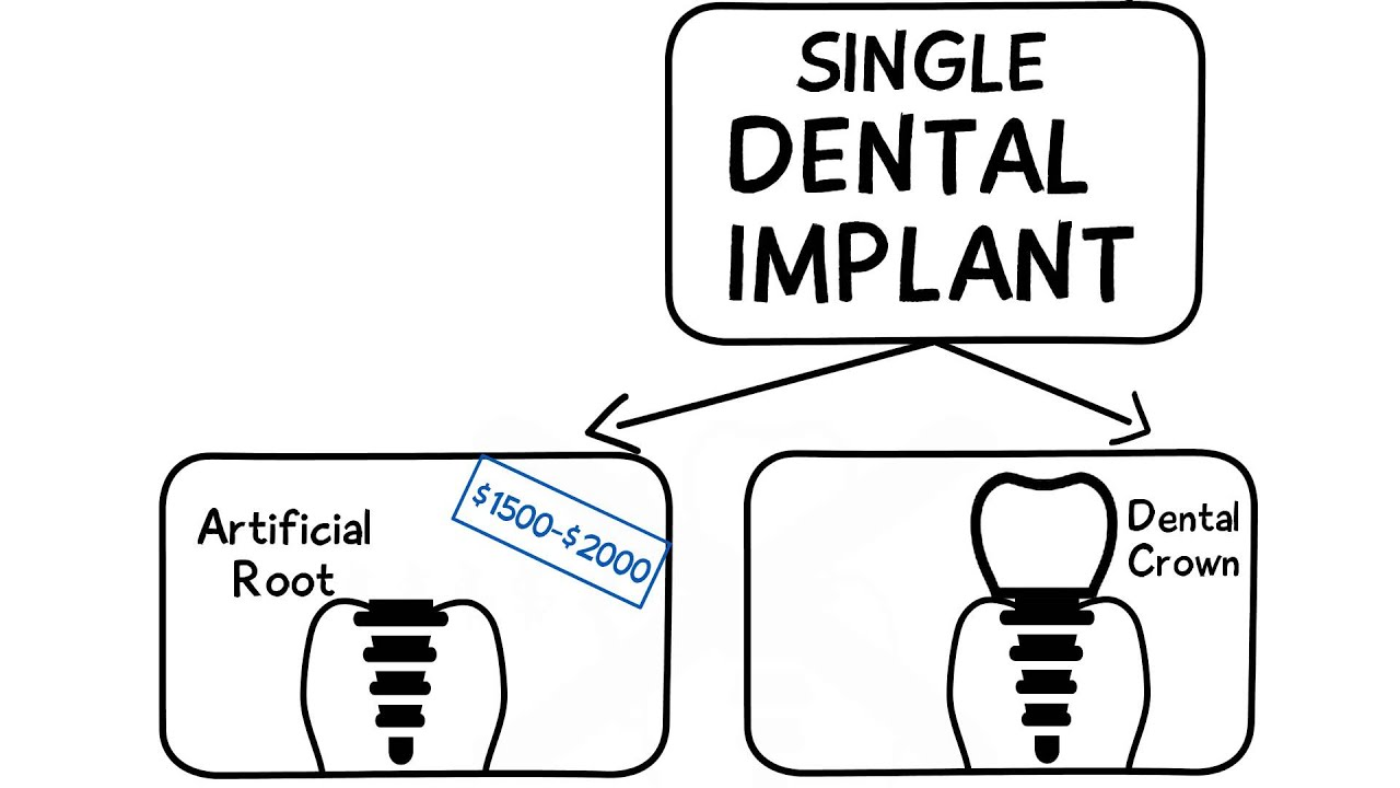 How Much Do Dental Implants Cost Whiteboard Video by