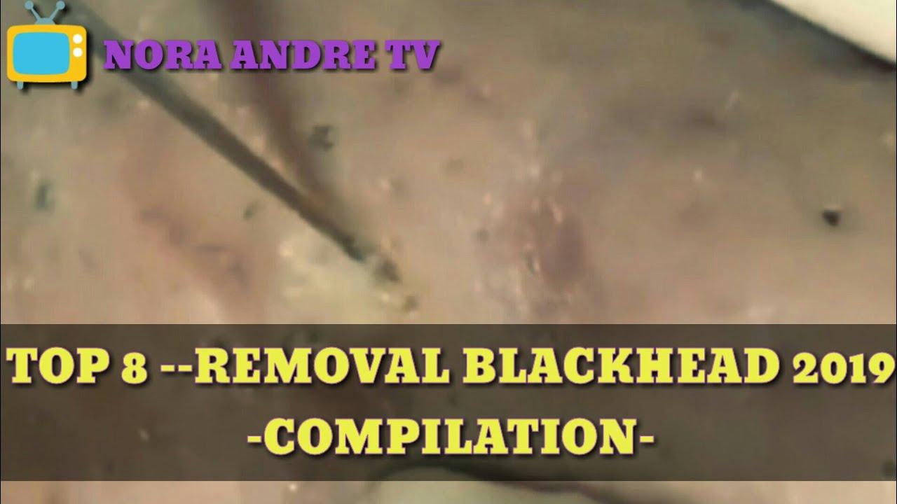 blackhead remove - top 8 blackhead compilation 2019-stafying