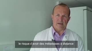 ASCO 2018 : radiothérapie et cancers du sein